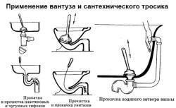 Применение вантуза и тросика
